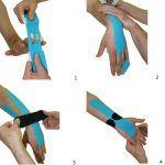 vendaje neuromuscular para el sindrome del tunel carpiano